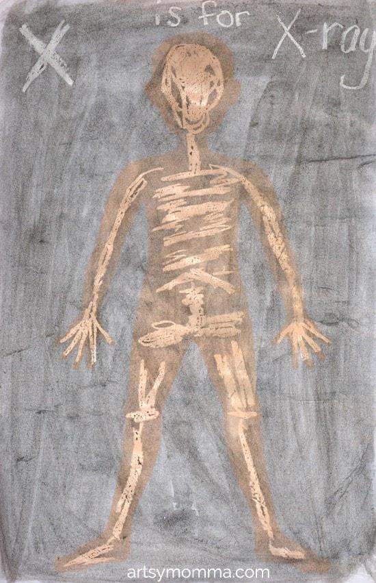 X-ray Craft   Watercolor Crayon Resist Art